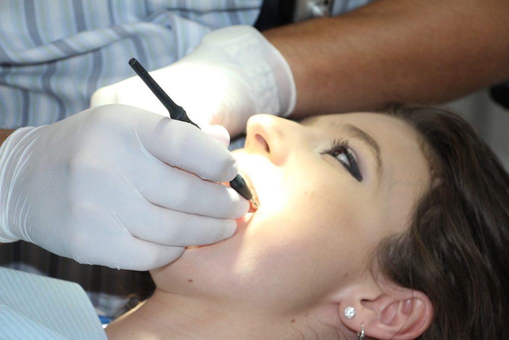 Sprawdź czy będziesz musiał usuwać zęby przed założeniem aparatu ortodontycznego