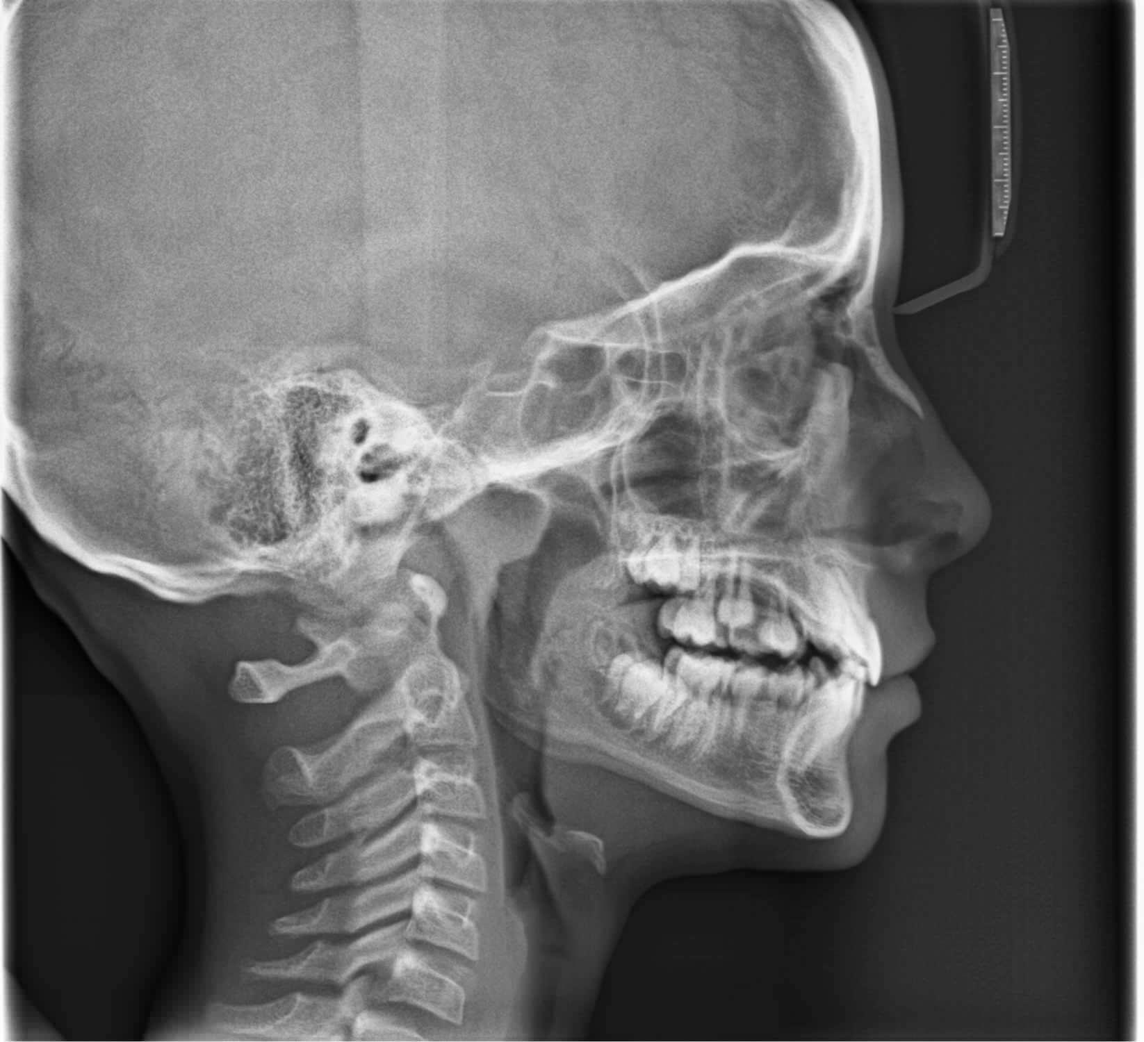 X-Ray Dental