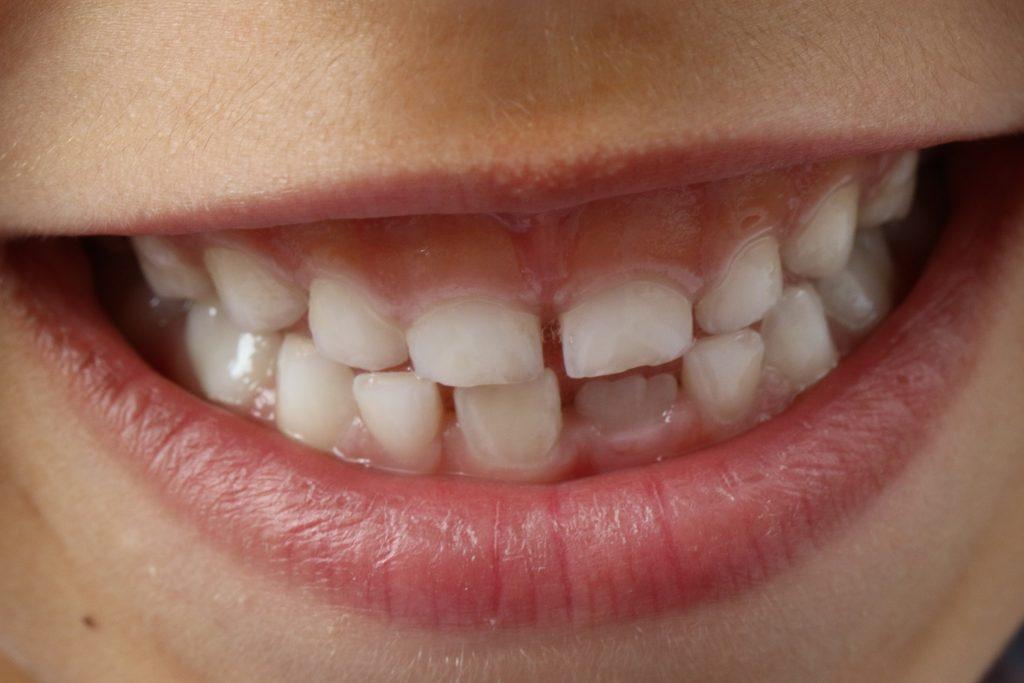 Wszystko, co musisz wiedzieć o wadach zgryzu - Ceny aparatów ortodontycznych Kraków