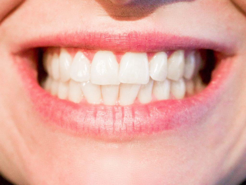 Pielęgnacja zębów – irygator - Aparaty Lingwalne Kraków