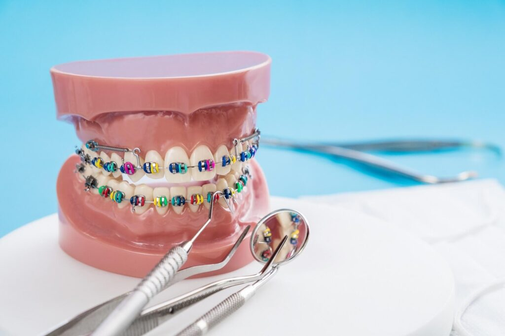 Kolory ligatur – jaki kolor gumek wybrać?